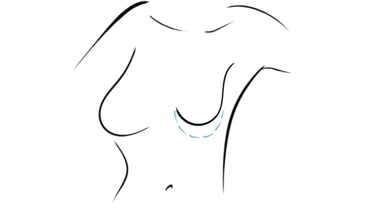 borstafwijking of borstasymmetrie