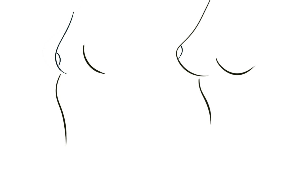 Borstafwijkingen, onderontwikkelde borsten