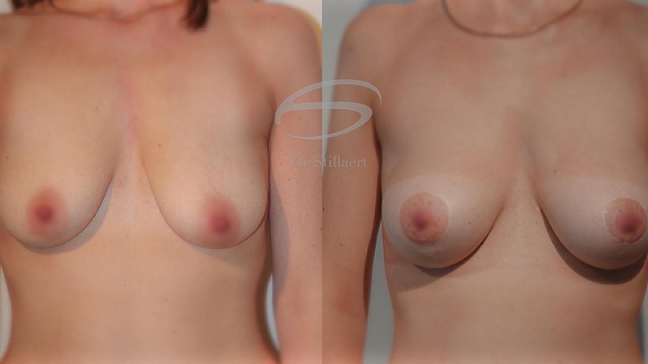 Borstlifting met lipofilling, voor en na