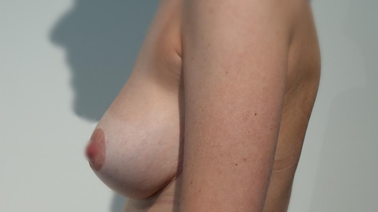 Borstlifting met Lipofilling, foto na de ingreep