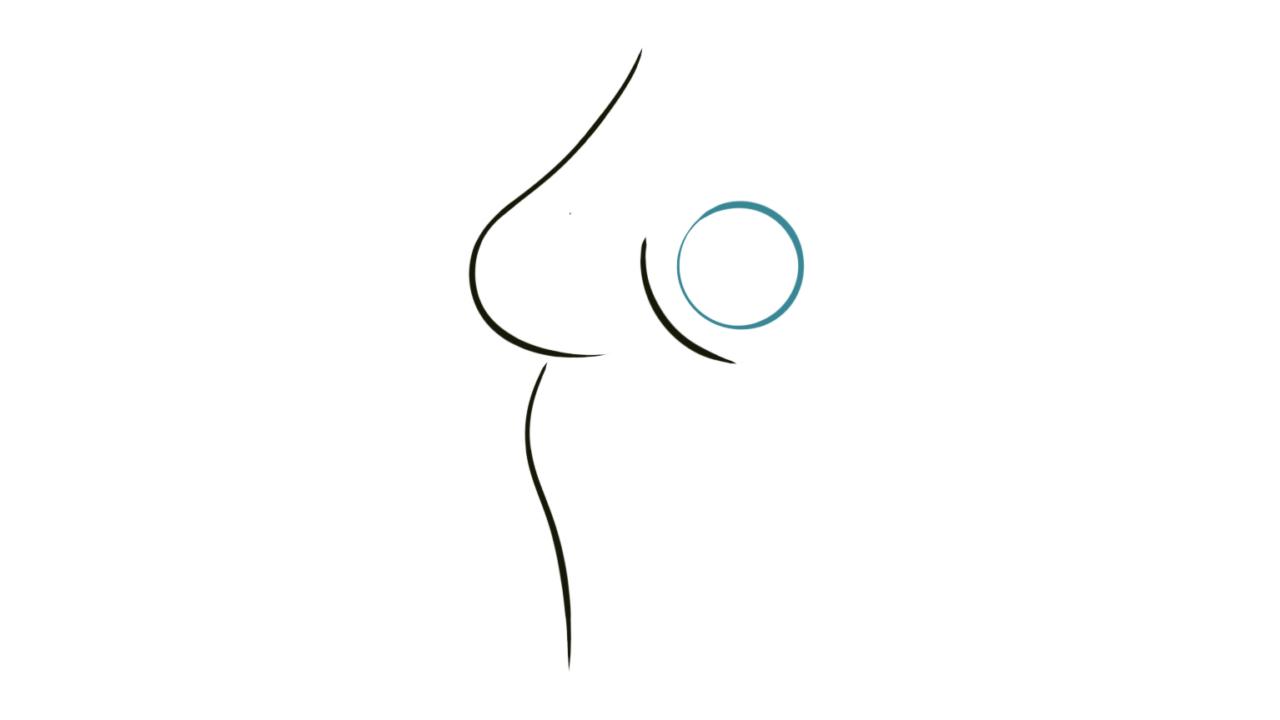 borstprothese vervangen om de 10 jaar