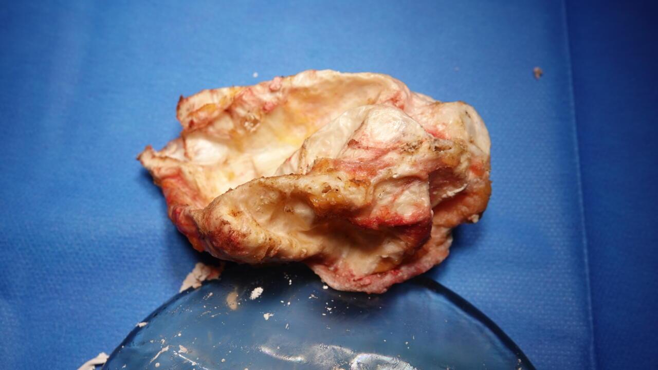 kapselvorming rond borstprothese