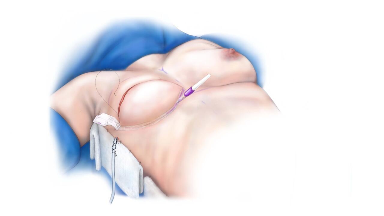 borstreconstructie diep flap