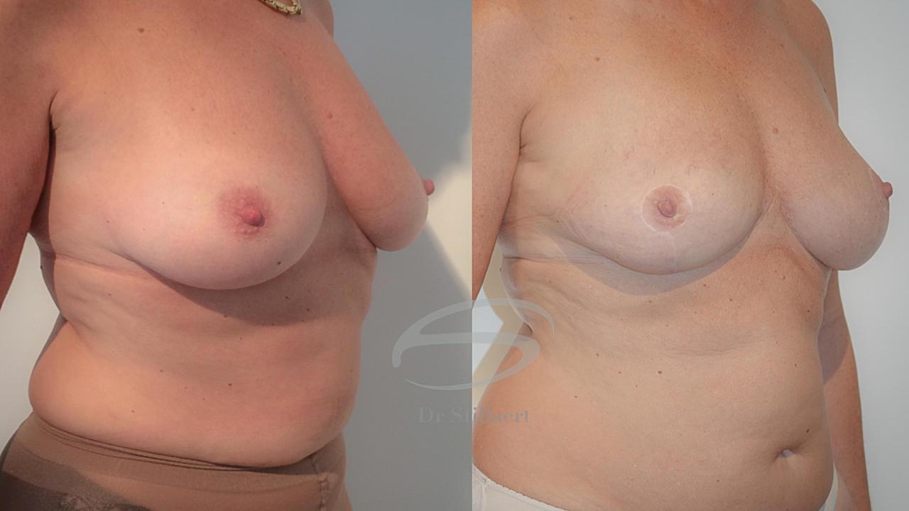 borstreconstructie met lipofilling