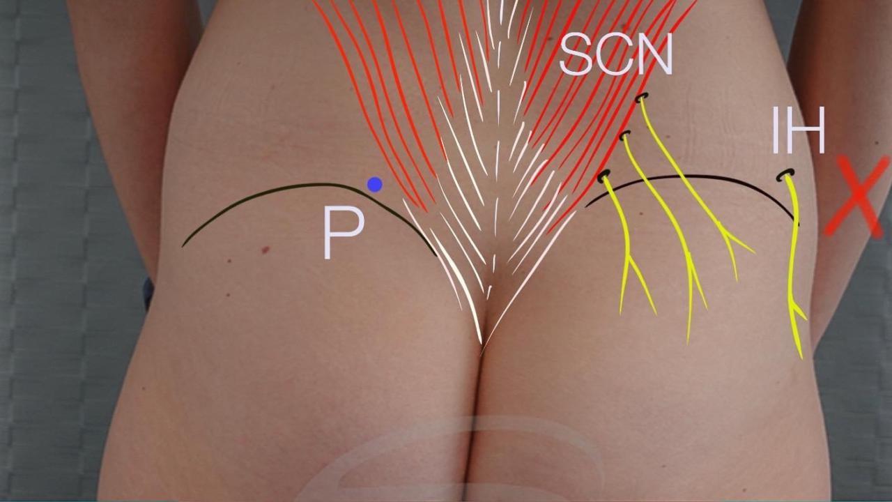 borstreconstructie met de lumbar flap
