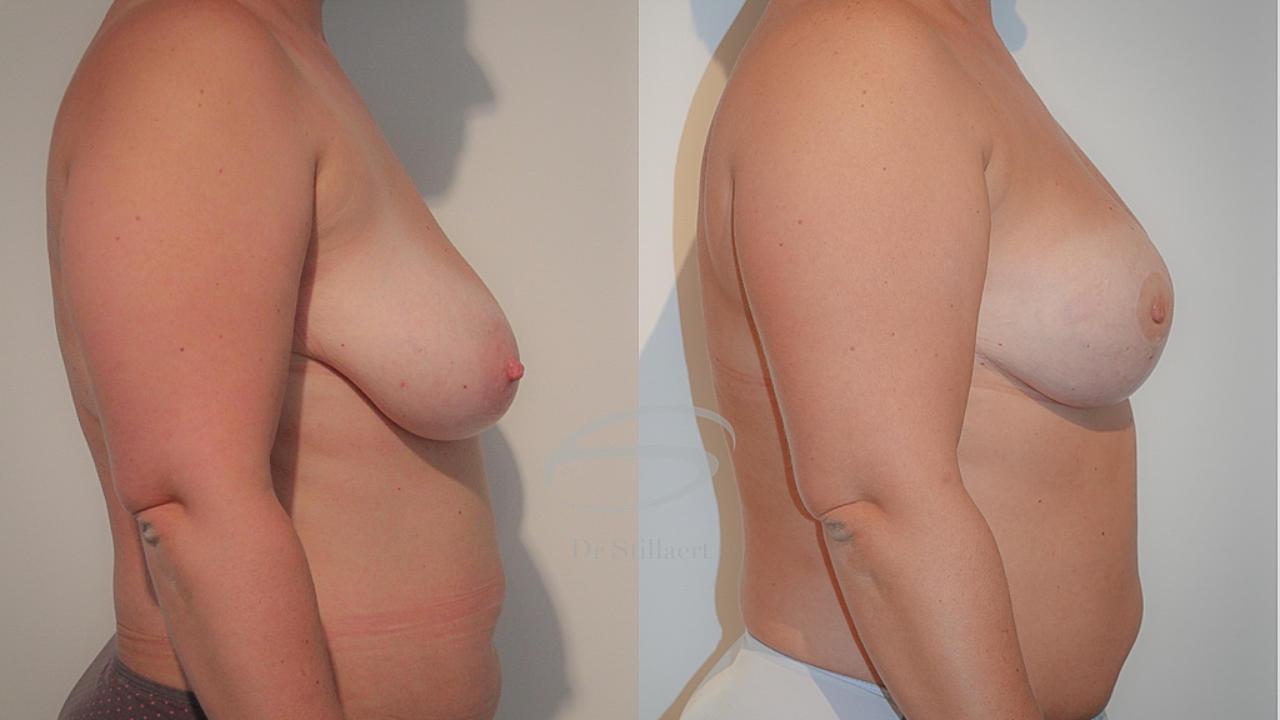 Hybride borstreconstructie