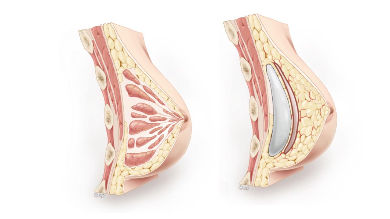 borstreconstructie met prothese