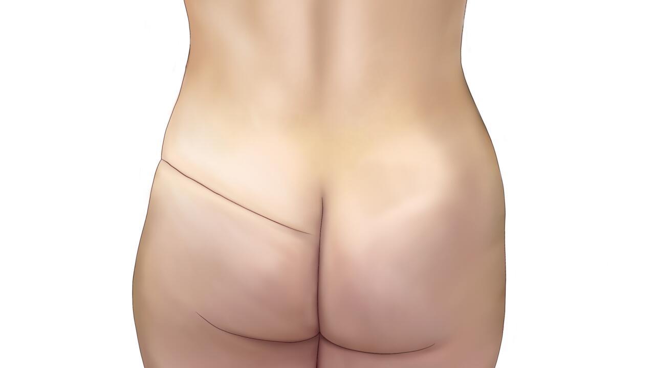sgap flap voor borstreconstructie