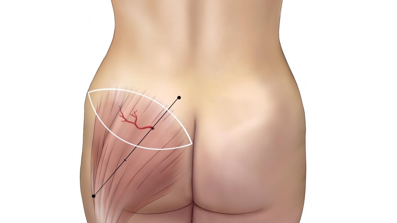 SGAP flap borstreconstructie