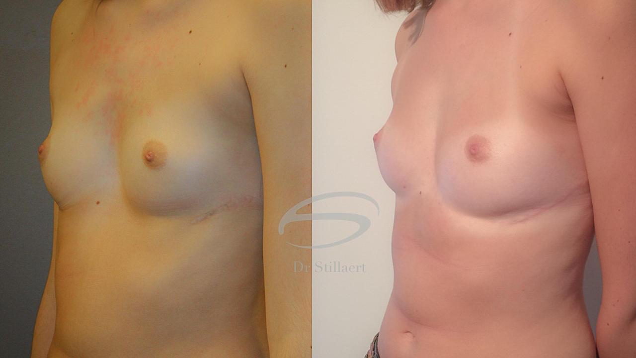 borstvergroting met lipofilling voor en na (resultaat)