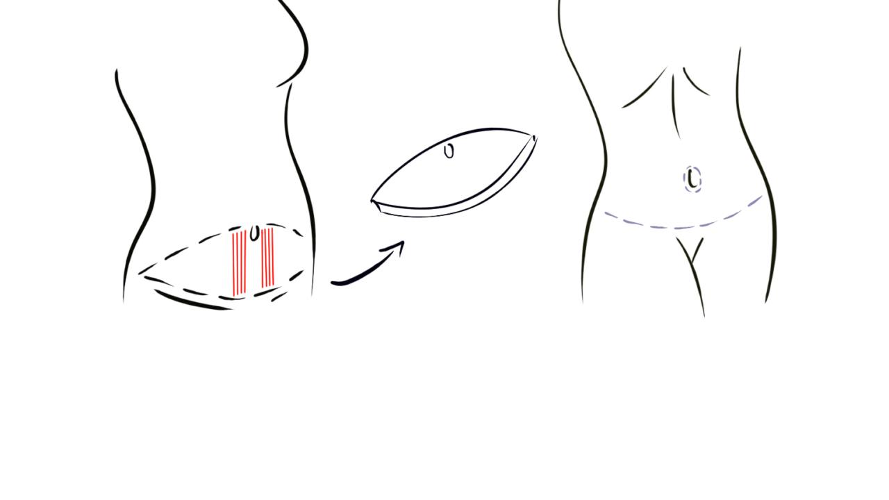 Buikwandcorrectie met lipofilling