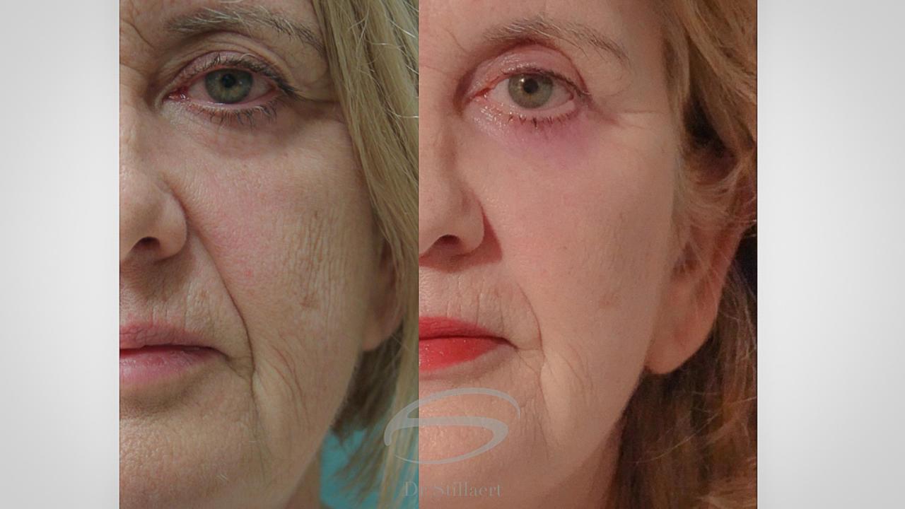 Facelift, voor en na, lipofilling