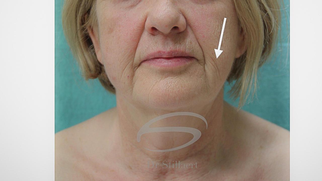 Facelift met Lipofilling