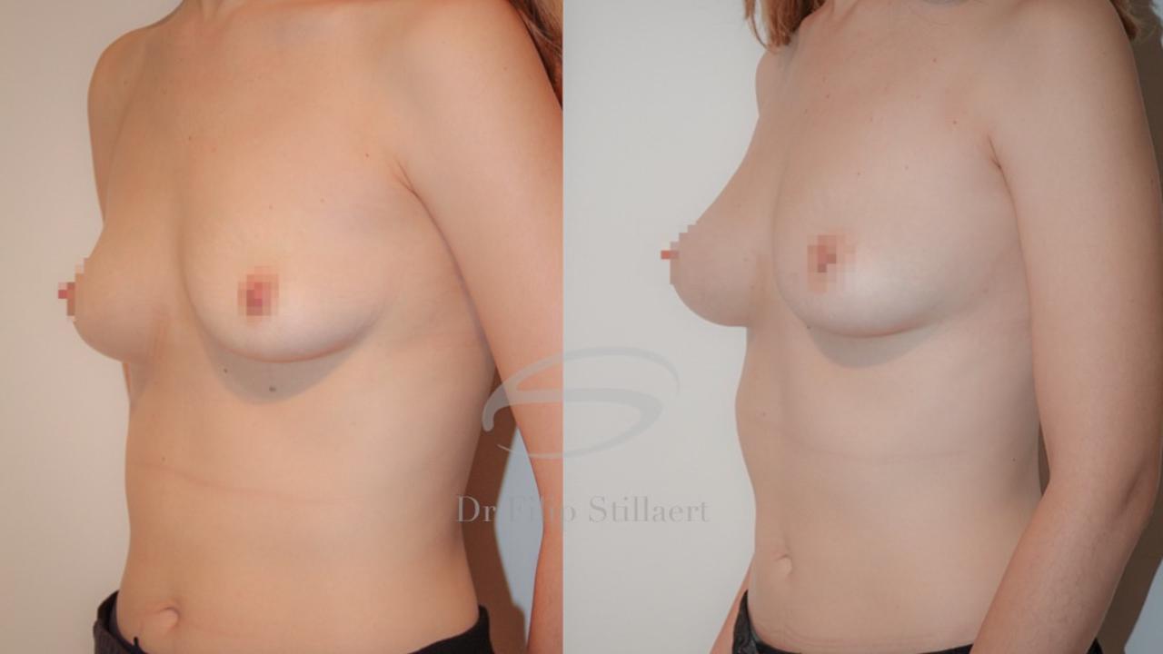 lipofilling borsten