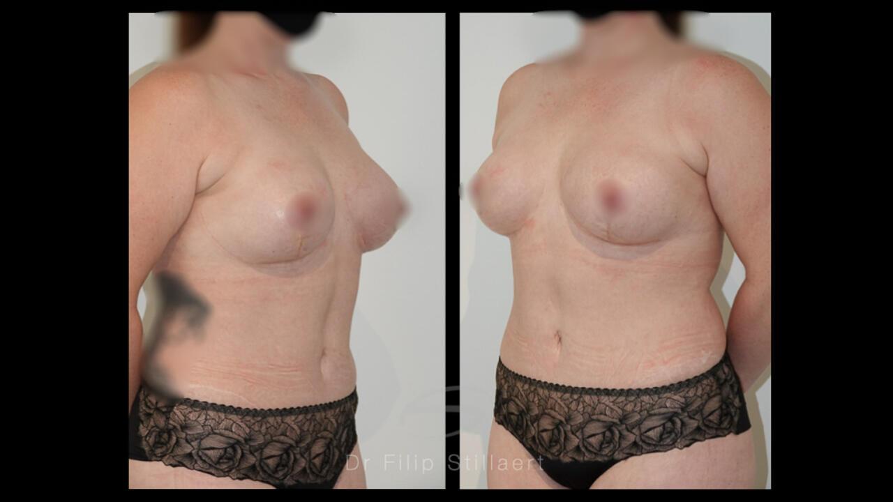 high definition liposuctie