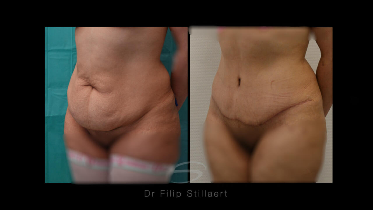 high definition abdominoplastie