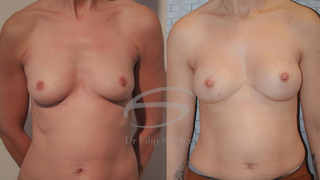 lumbar flap borstreconstructie
