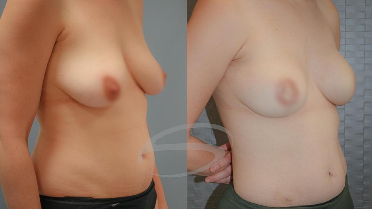 Lumbar flap borstreconstructie voorbeeld