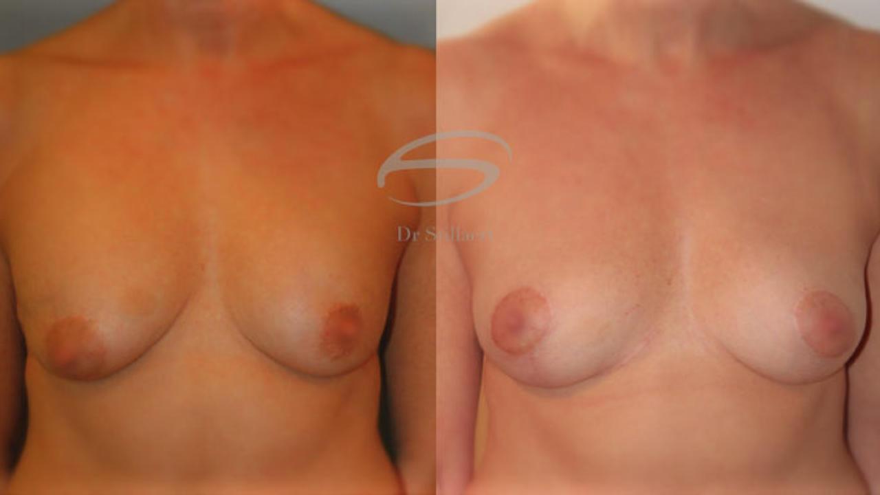 liften van de borsten