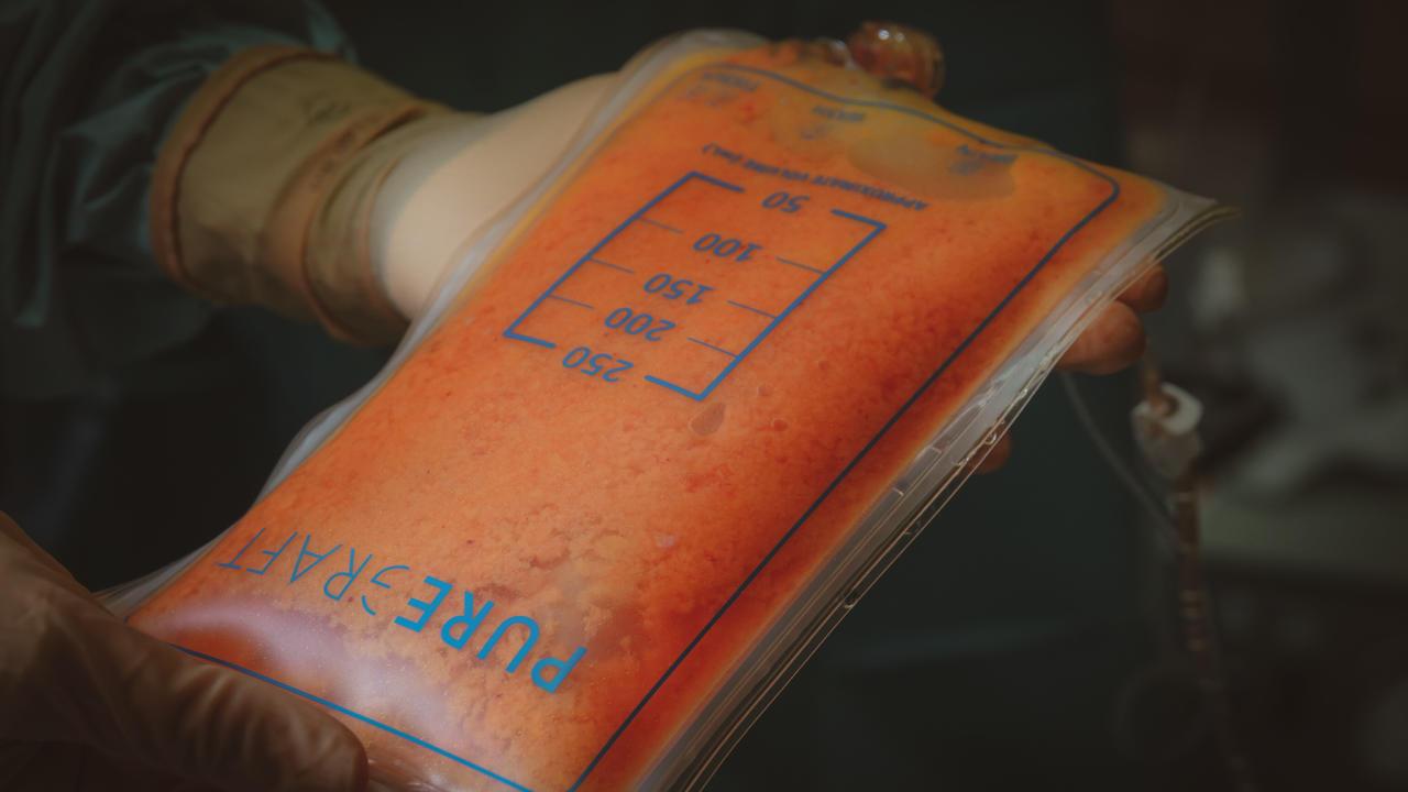 Lipofilling, zuiveren van het vet