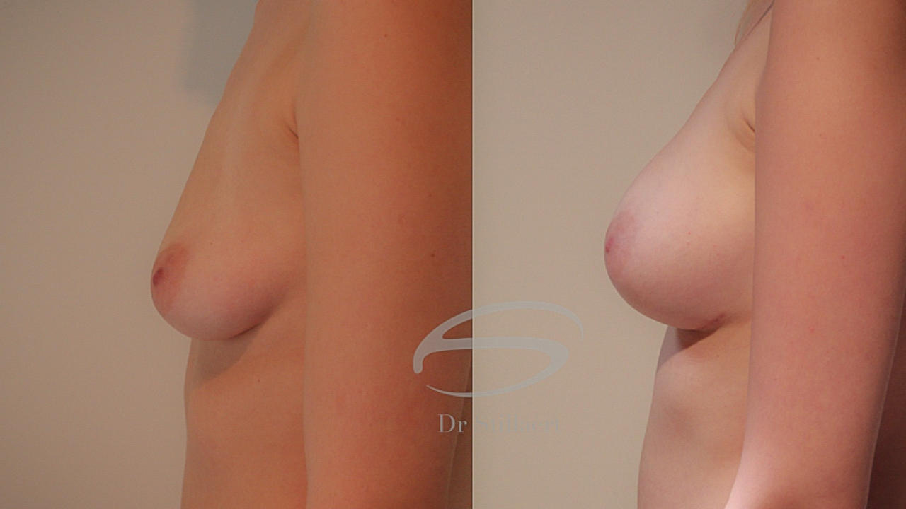 hybride borstvergroting, borstvergroting met prothese en lipofilling, voor en na