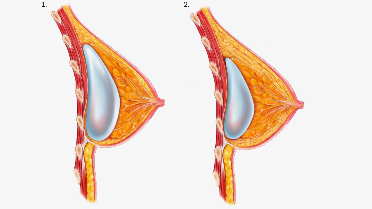 Wat is hybride borstvergroting? stap per stap uitgelegd