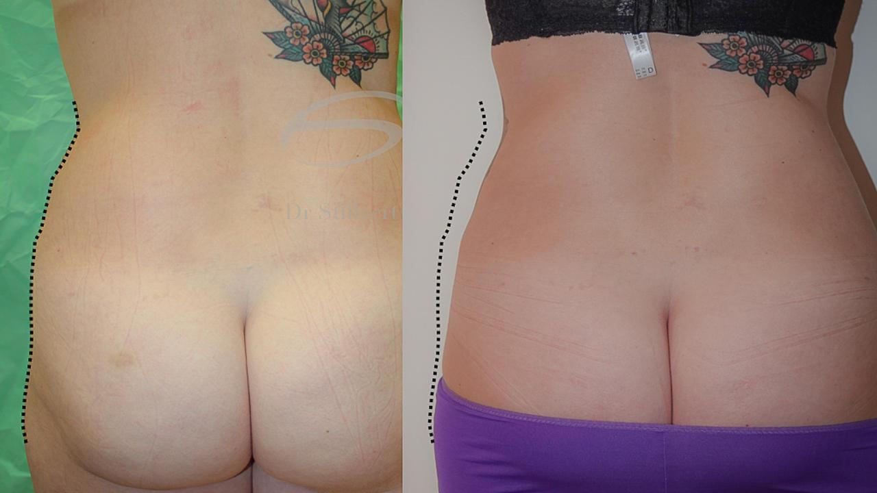 liposuctie, voor en na
