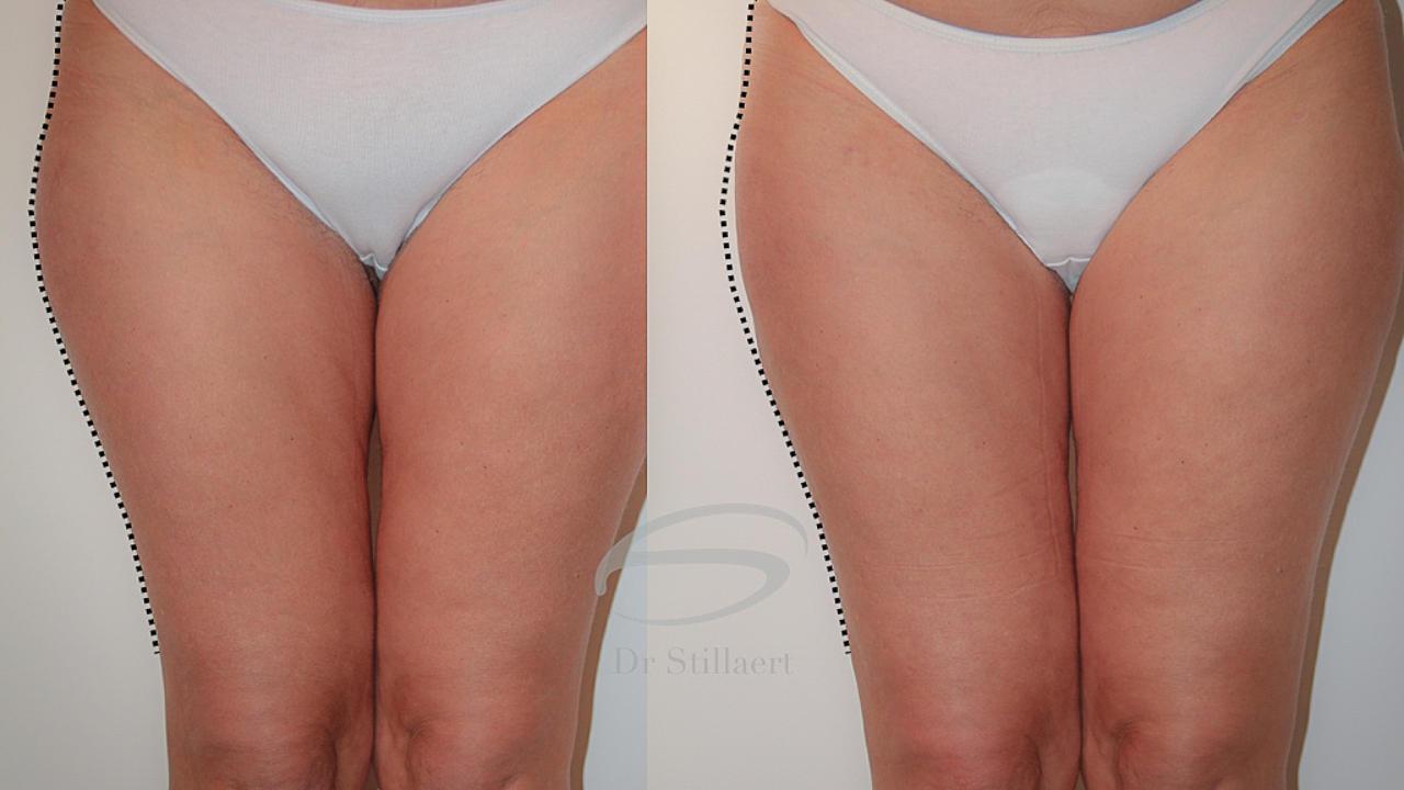 liposuctie voor en na
