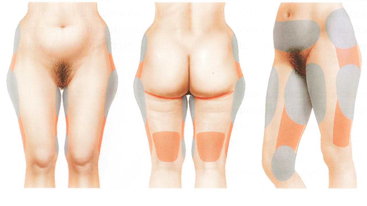 te vermijden zones bij liposuctie