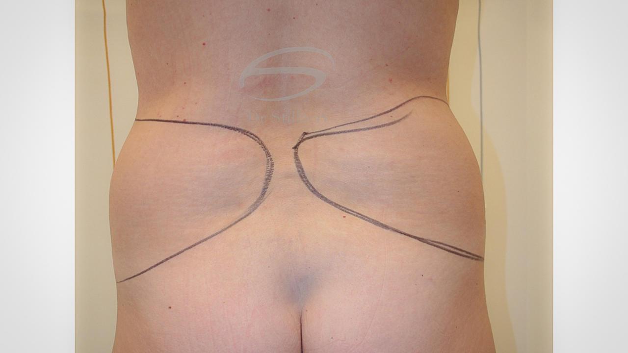 liposuctie voor de ingreep