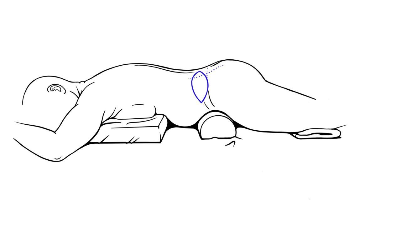 borstreconstructie met lumbar flap