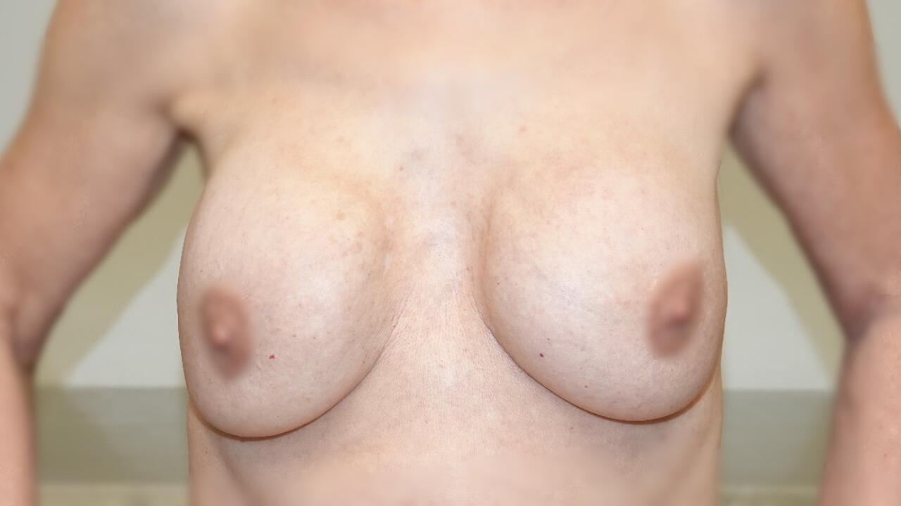 kapselvorming borstprothesen